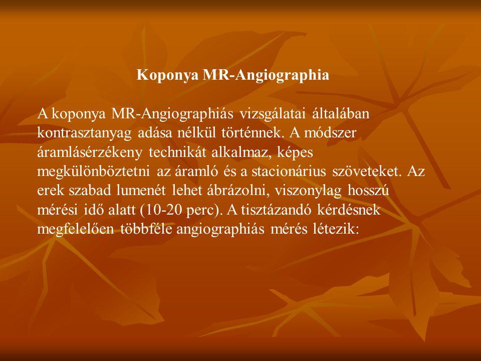 Koponya MR-Angiographia