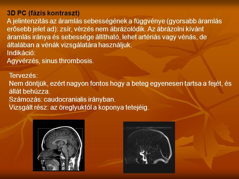 Agyvérzés, sinus thrombosis.