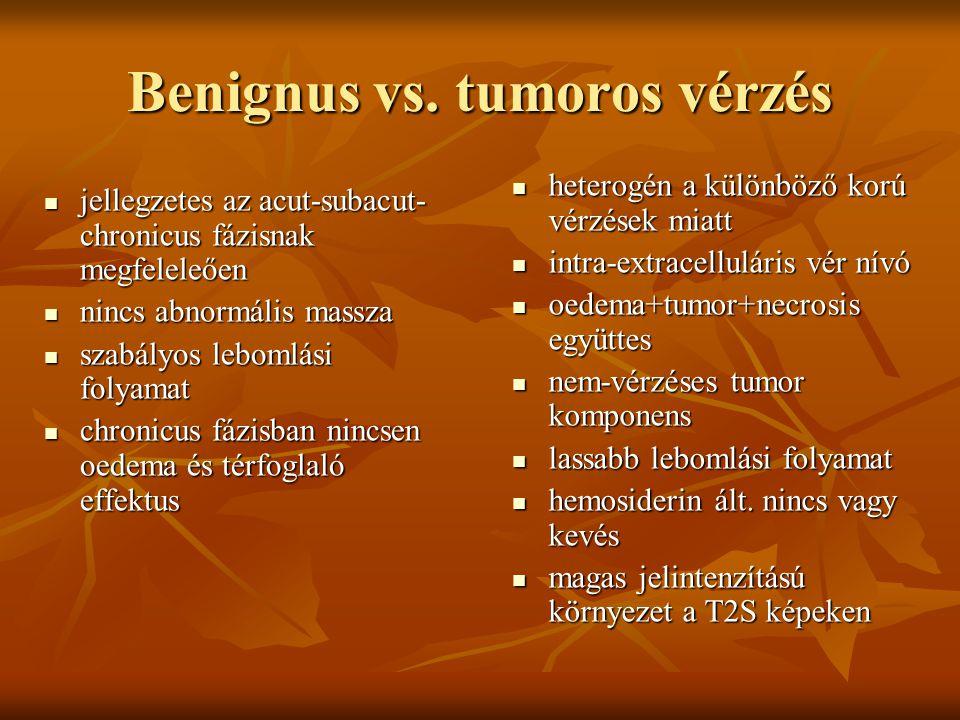 Benignus vs. tumoros vérzés