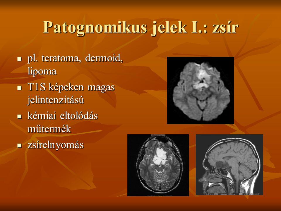 Patognomikus jelek I.: zsír