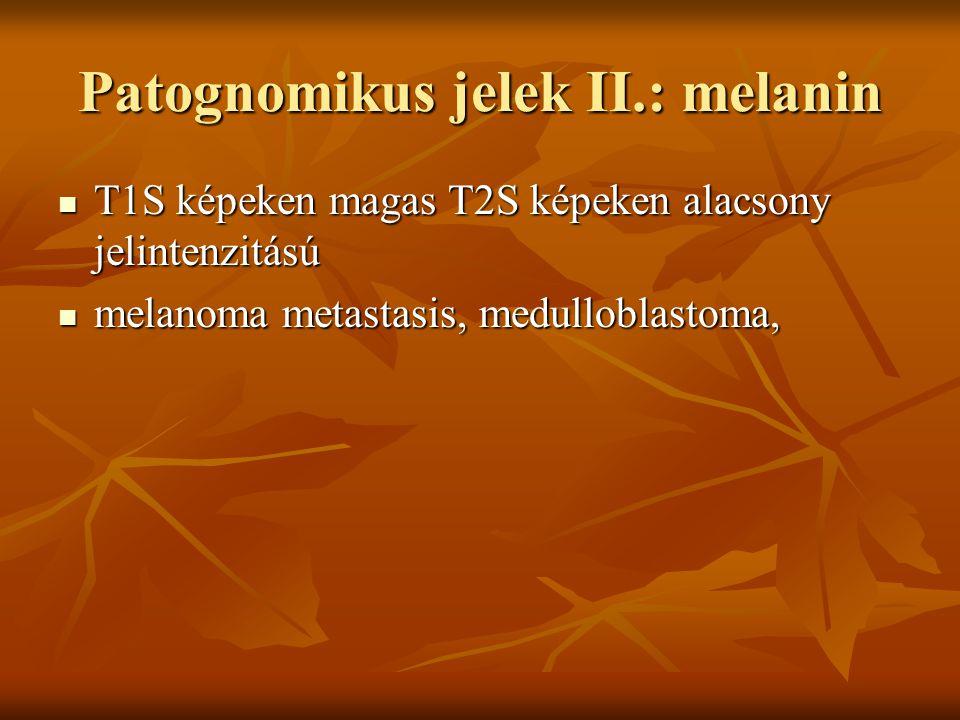 Patognomikus jelek II.: melanin