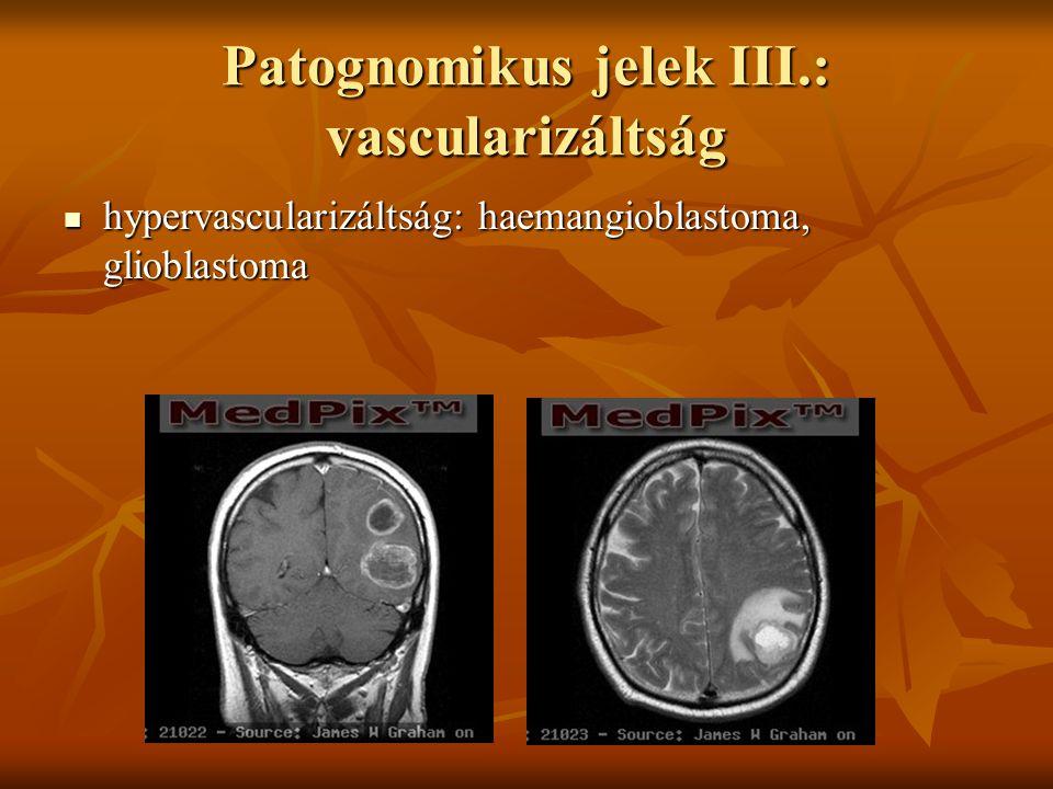 Patognomikus jelek III.: vascularizáltság