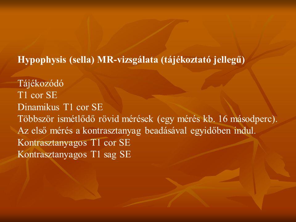 Hypophysis (sella) MR-vizsgálata (tájékoztató jellegű)