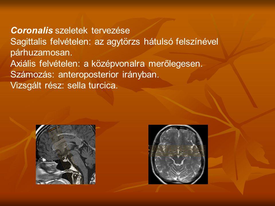 Sagittalis felvételen: az agytörzs hátulsó felszínével párhuzamosan.