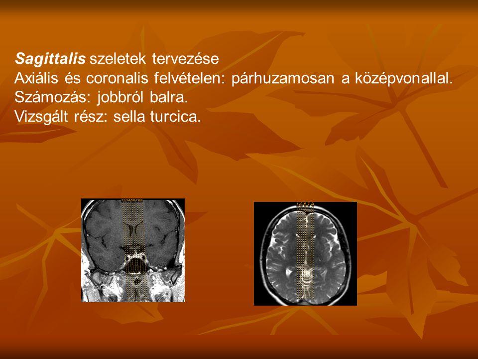 Axiális és coronalis felvételen: párhuzamosan a középvonallal.