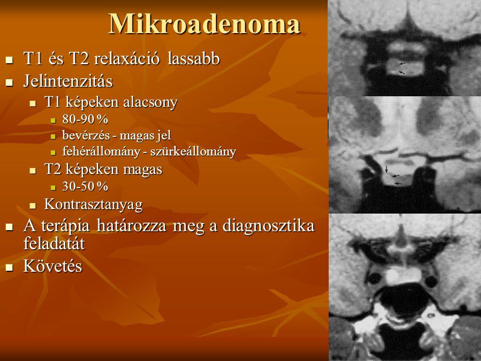 Mikroadenoma T1 és T2 relaxáció lassabb Jelintenzitás