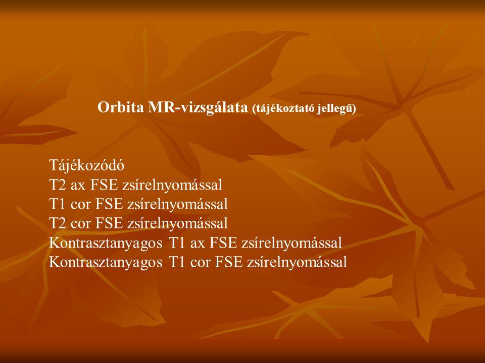 Orbita MR-vizsgálata (tájékoztató jellegű)