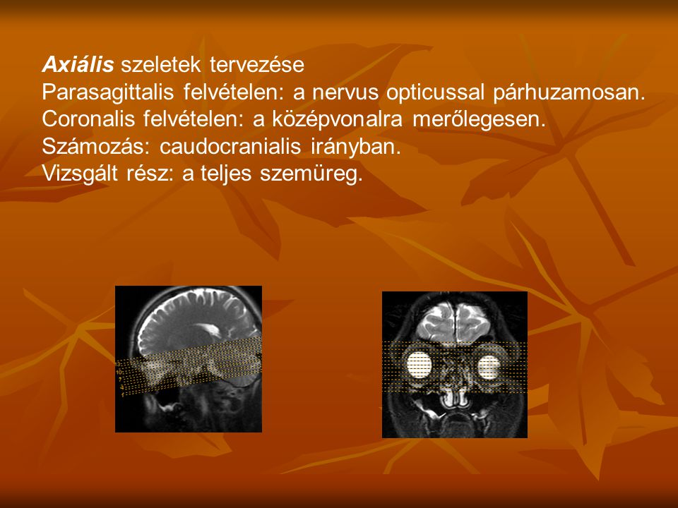 Parasagittalis felvételen: a nervus opticussal párhuzamosan.