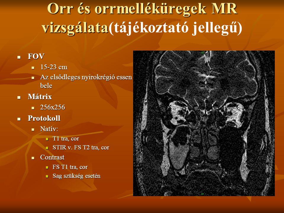 Orr és orrmelléküregek MR vizsgálata(tájékoztató jellegű)