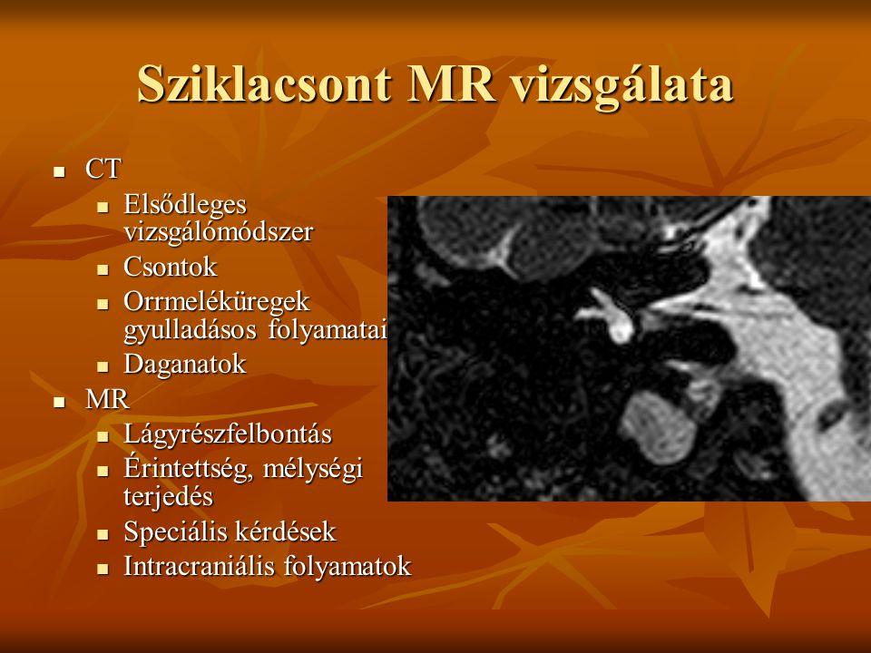 Sziklacsont MR vizsgálata