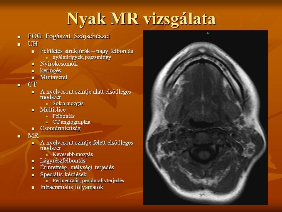 Nyak MR vizsgálata FOG, Fogászat, Szájsebészet UH CT MR