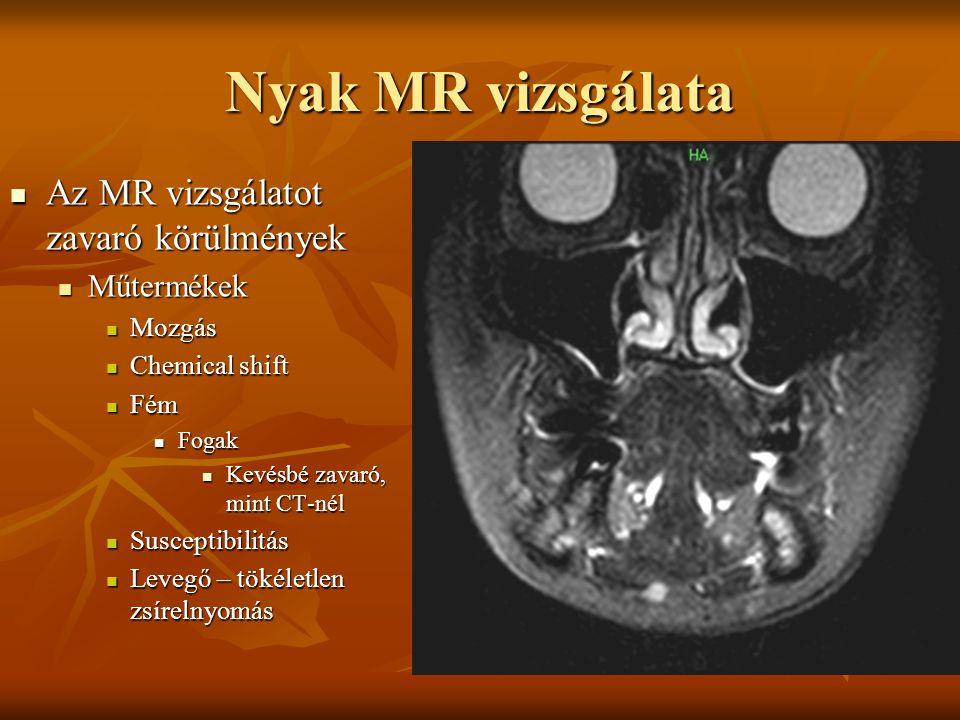 Nyak MR vizsgálata Az MR vizsgálatot zavaró körülmények Műtermékek