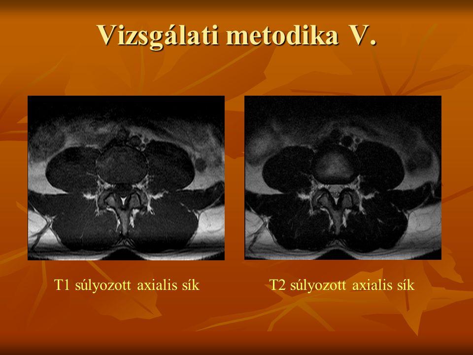 Vizsgálati metodika V. T1 súlyozott axialis sík