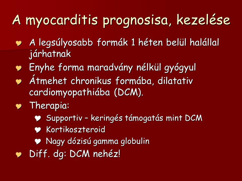 A myocarditis prognosisa, kezelése