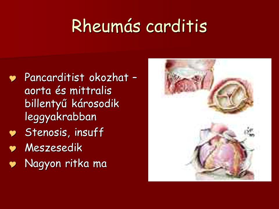 Rheumás carditis Pancarditist okozhat – aorta és mittralis billentyű károsodik leggyakrabban. Stenosis, insuff.
