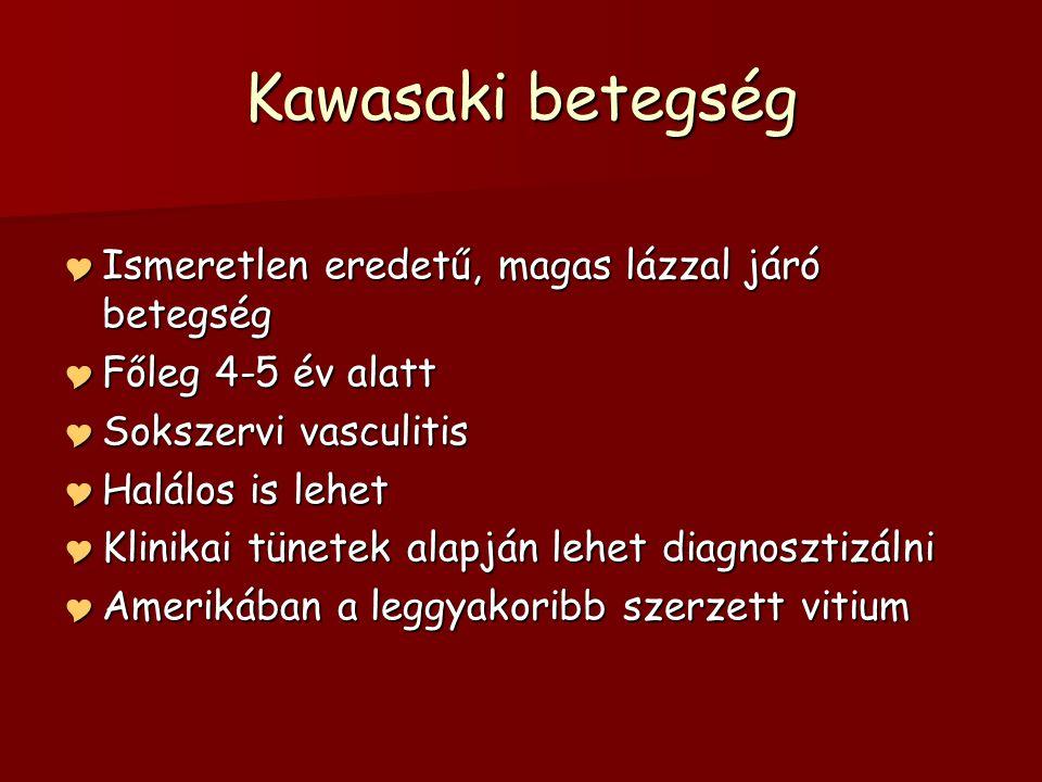 Kawasaki betegség Ismeretlen eredetű, magas lázzal járó betegség