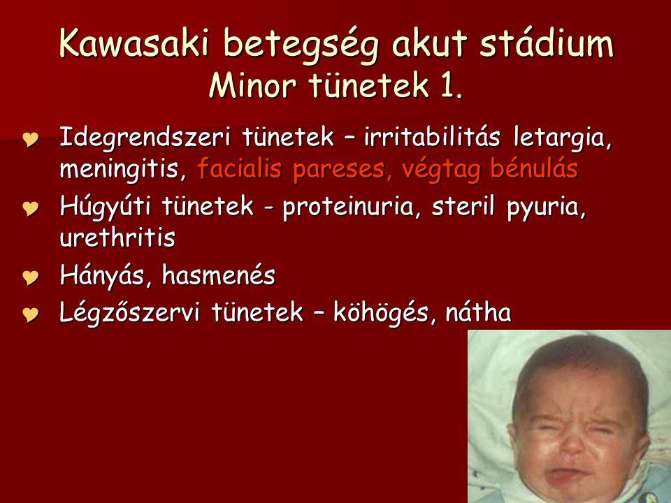 Kawasaki betegség akut stádium Minor tünetek 1.
