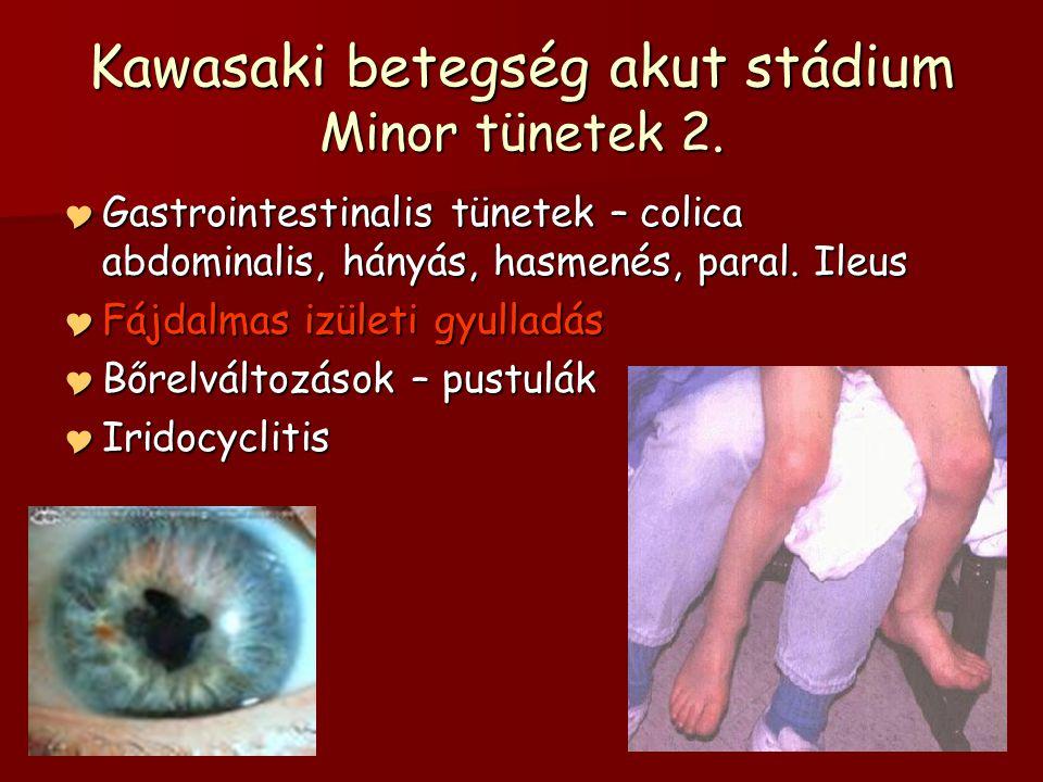 Kawasaki betegség akut stádium Minor tünetek 2.