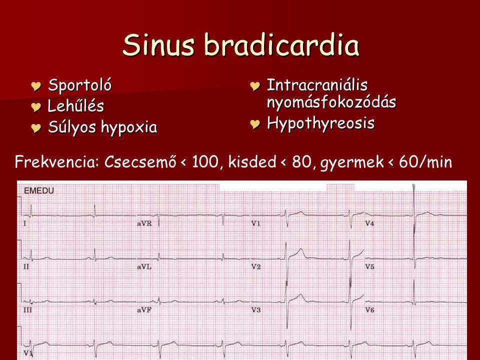 Sinus bradicardia Sportoló Lehűlés Súlyos hypoxia