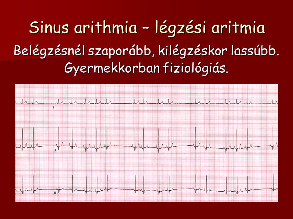 Sinus arithmia – légzési aritmia