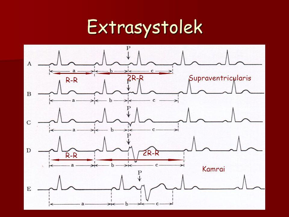 Extrasystolek 2R-R Supraventricularis R-R 2R-R R-R Kamrai