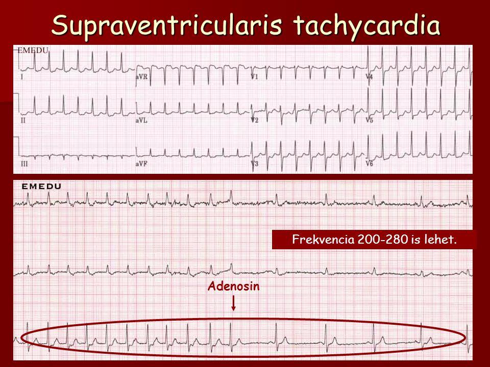 Supraventricularis tachycardia