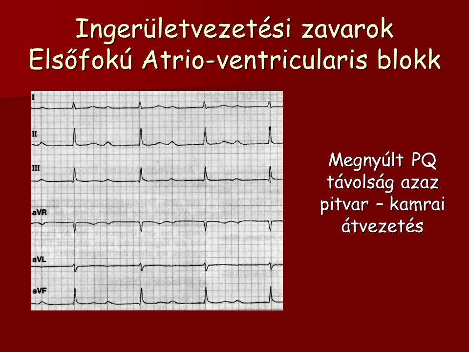 Ingerületvezetési zavarok Elsőfokú Atrio-ventricularis blokk