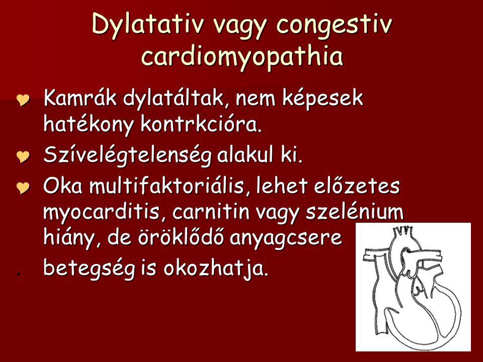 Dylatativ vagy congestiv cardiomyopathia