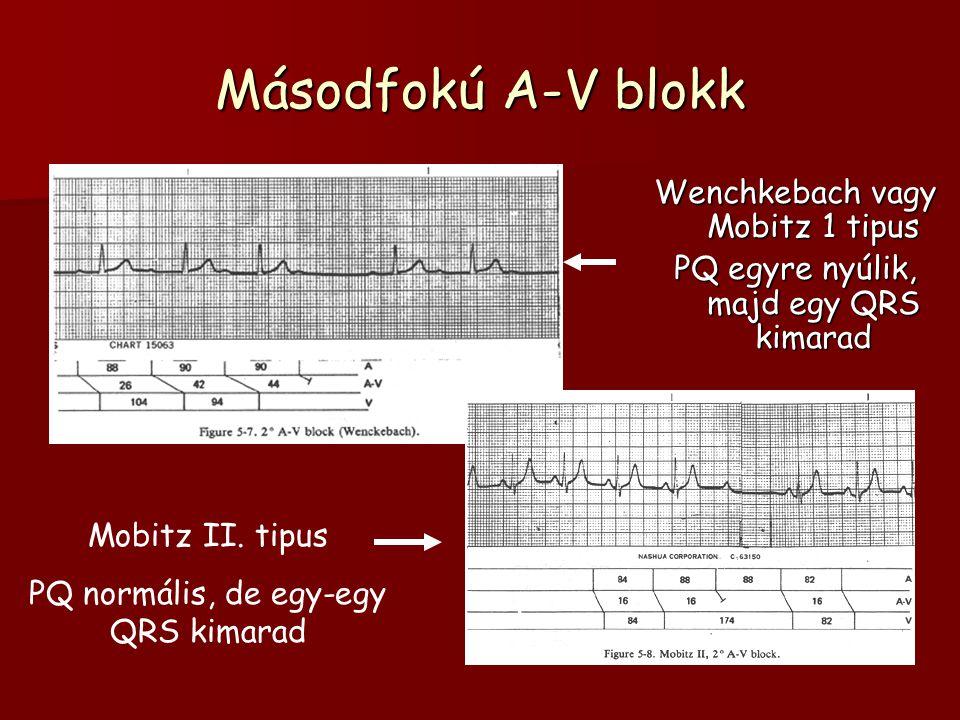 Másodfokú A-V blokk Wenchkebach vagy Mobitz 1 tipus