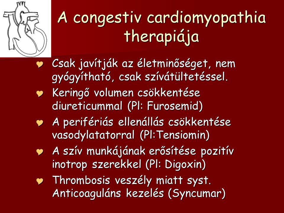 A congestiv cardiomyopathia therapiája