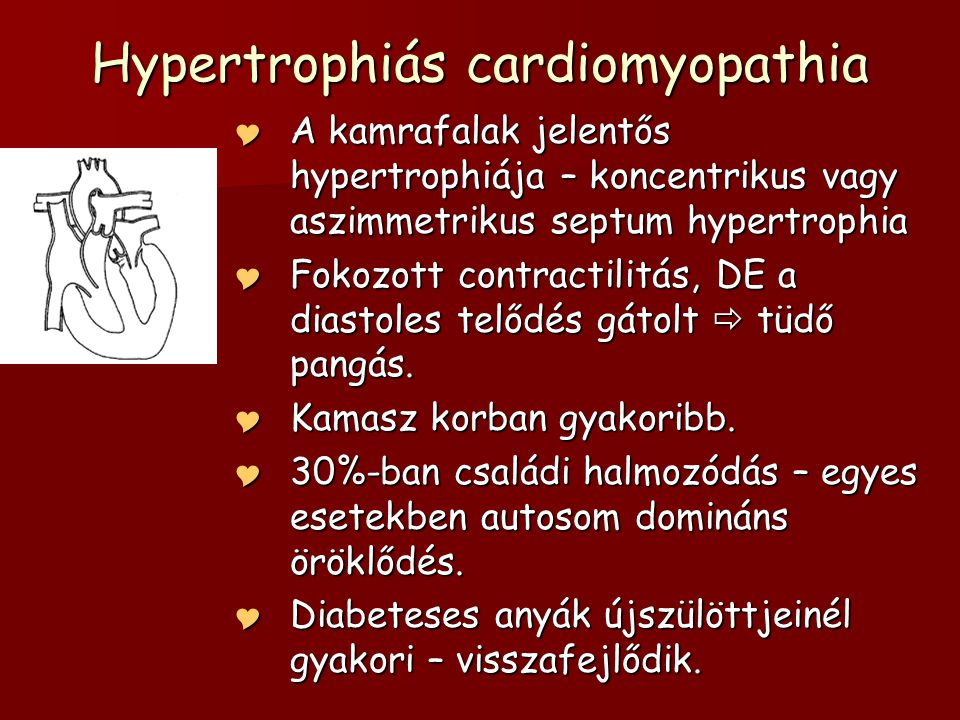 Hypertrophiás cardiomyopathia