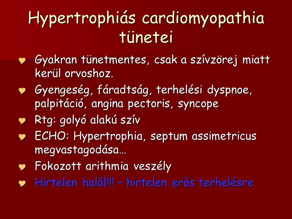 Hypertrophiás cardiomyopathia tünetei