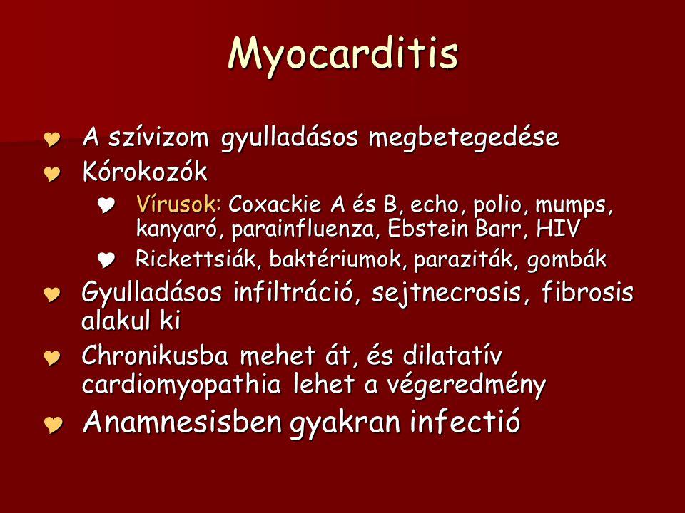 Myocarditis Anamnesisben gyakran infectió
