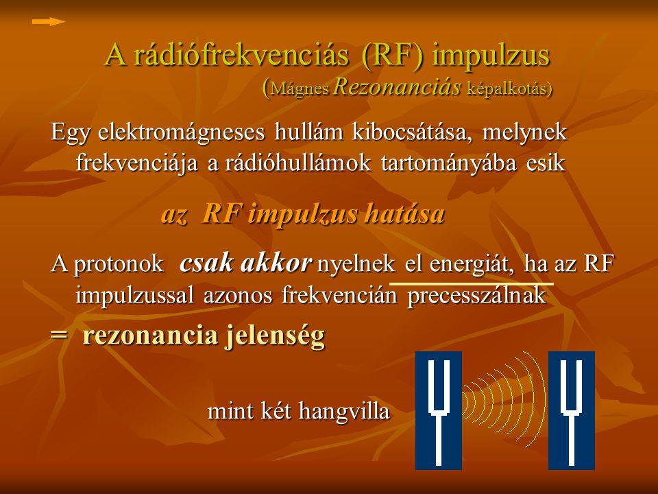 A rádiófrekvenciás (RF) impulzus (Mágnes Rezonanciás képalkotás)