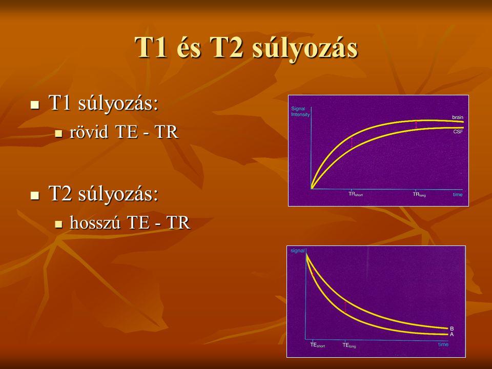 T1 és T2 súlyozás T1 súlyozás: T2 súlyozás: rövid TE - TR