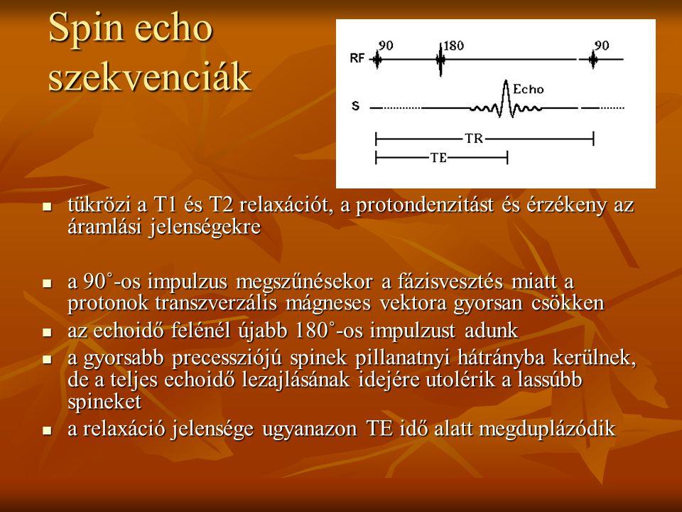 Spin echo szekvenciák tükrözi a T1 és T2 relaxációt, a protondenzitást és érzékeny az áramlási jelenségekre.
