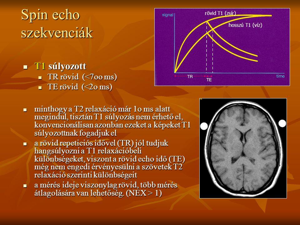 Spin echo szekvenciák T1 súlyozott TR rövid (<7oo ms)