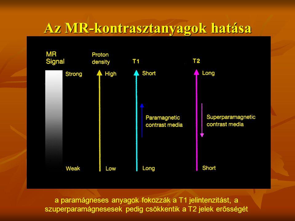 Az MR-kontrasztanyagok hatása