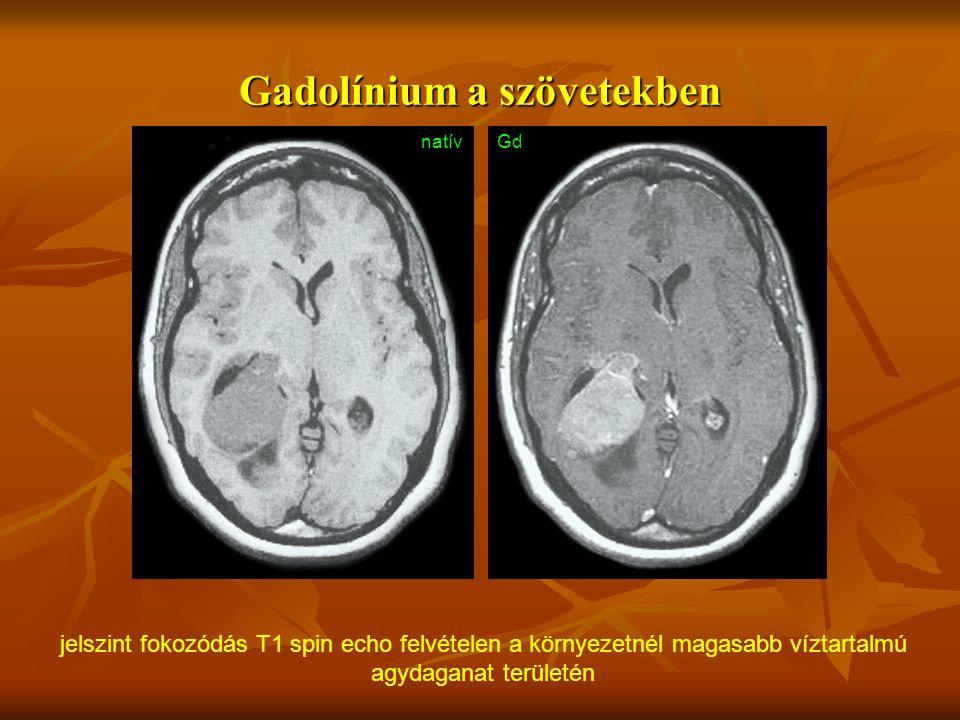 Gadolínium a szövetekben