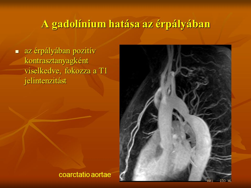 A gadolínium hatása az érpályában