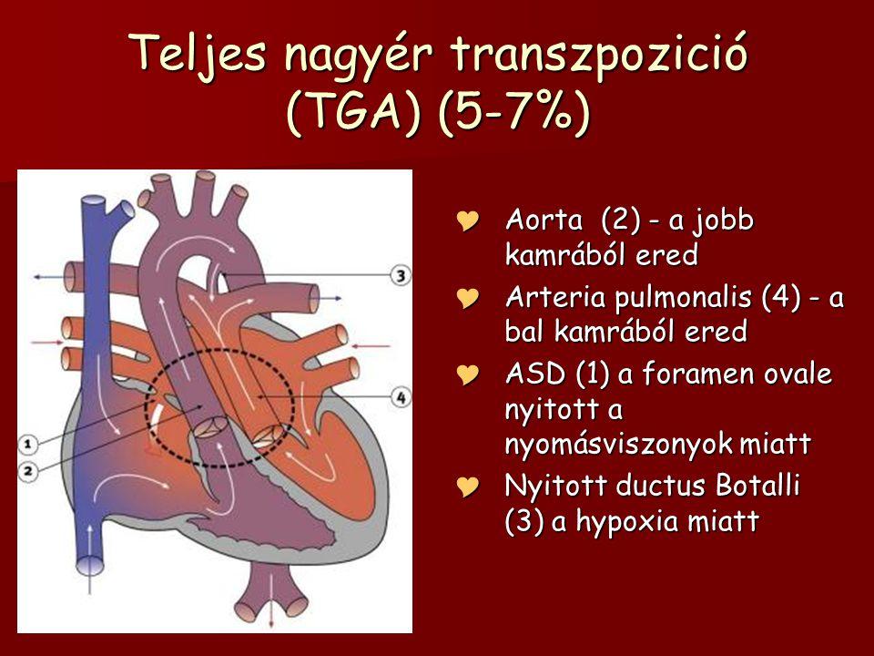 Teljes nagyér transzpozició (TGA) (5-7%)