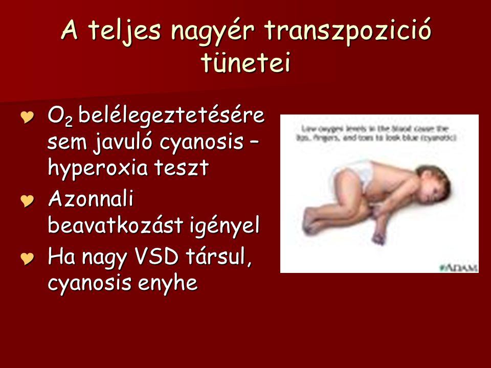 A teljes nagyér transzpozició tünetei