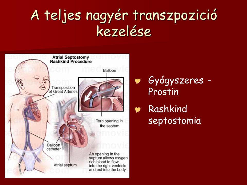 A teljes nagyér transzpozició kezelése