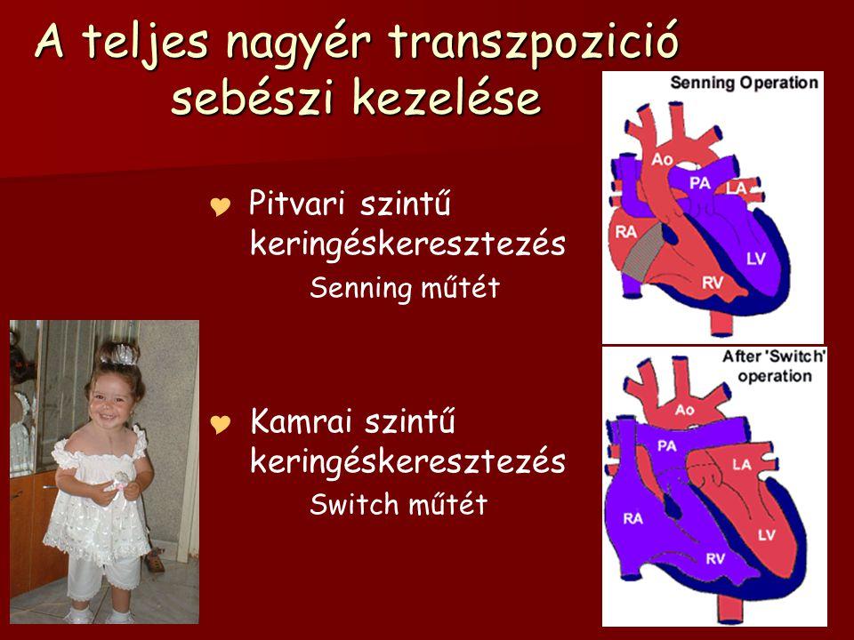 A teljes nagyér transzpozició sebészi kezelése