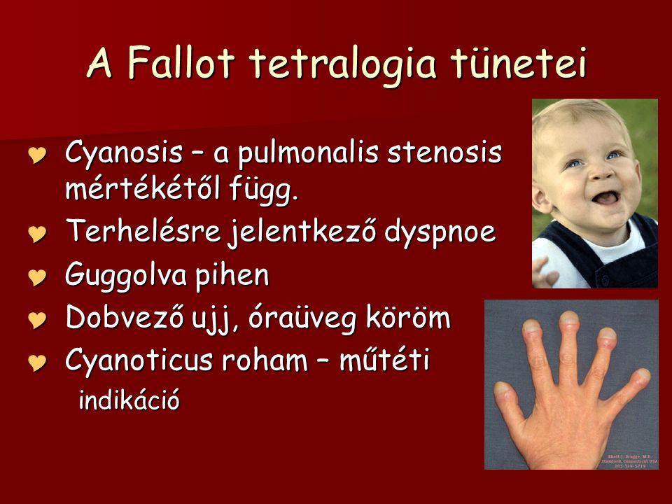 A Fallot tetralogia tünetei