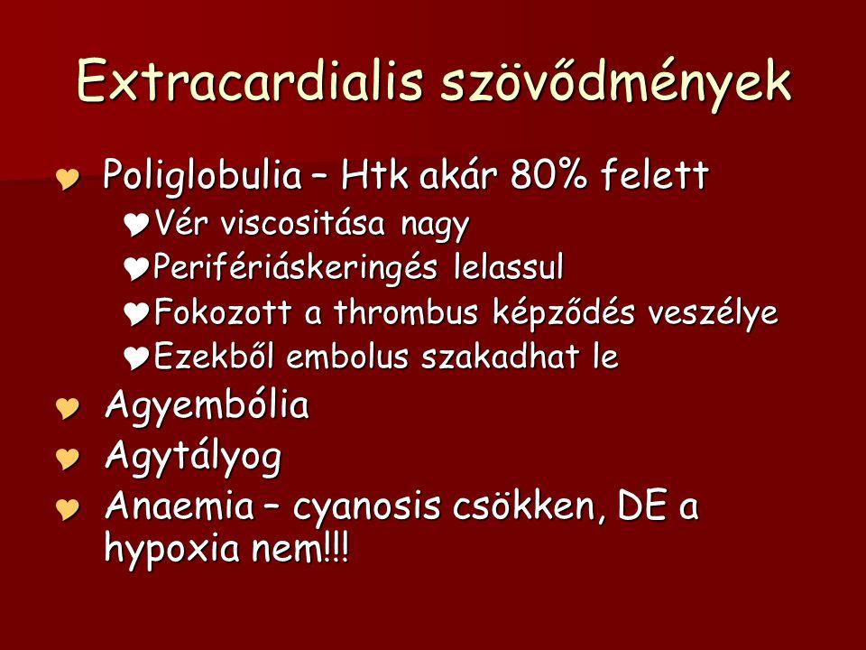 Extracardialis szövődmények