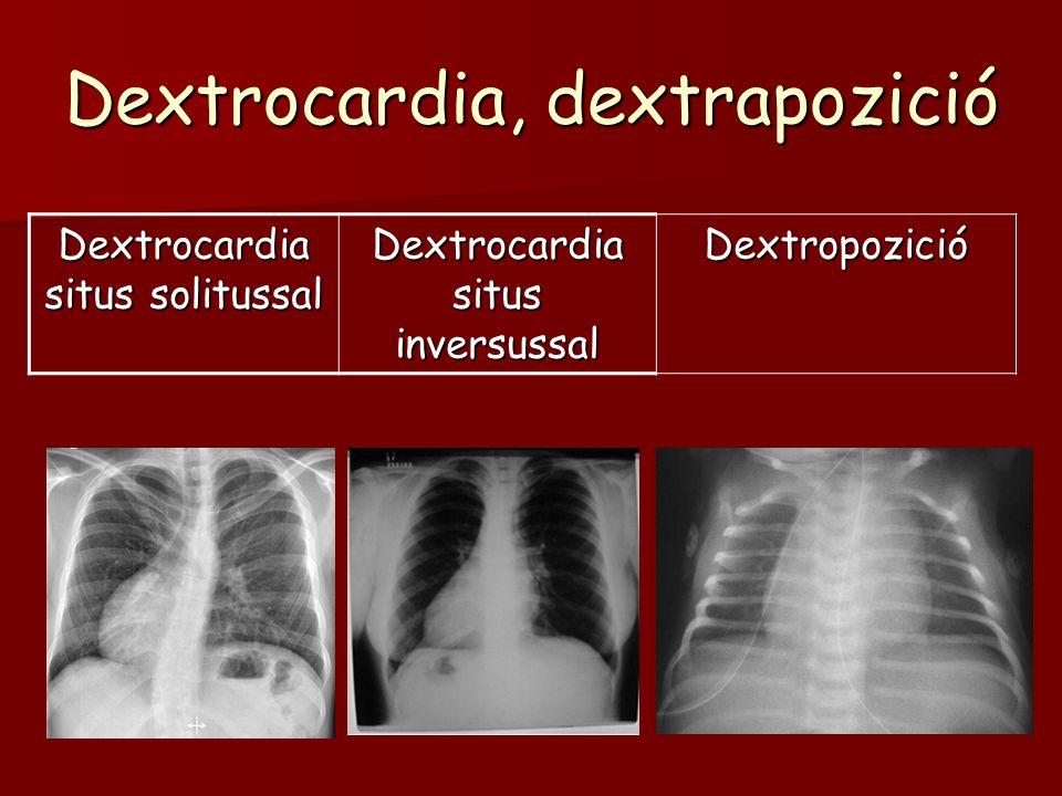 Dextrocardia, dextrapozició