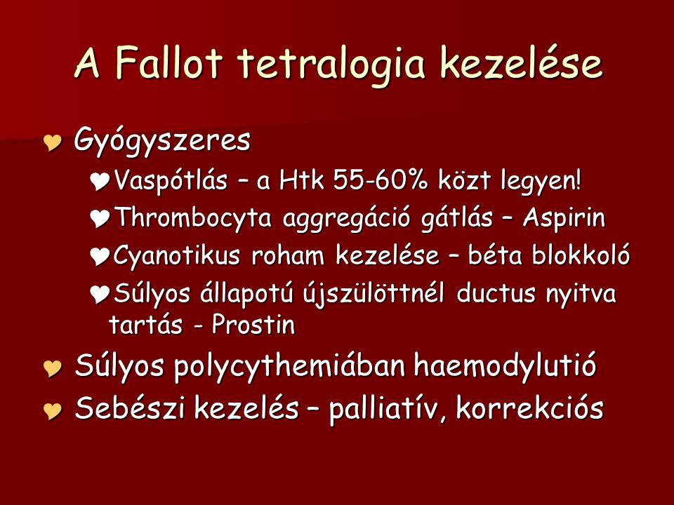 A Fallot tetralogia kezelése