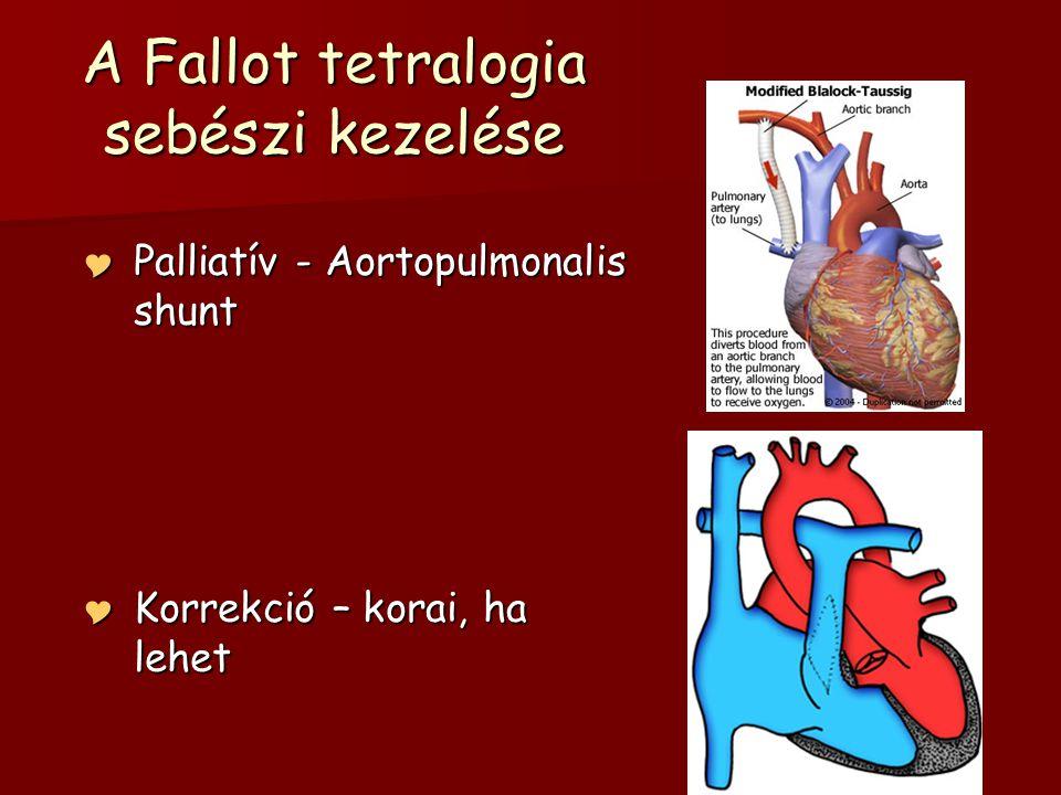 A Fallot tetralogia sebészi kezelése