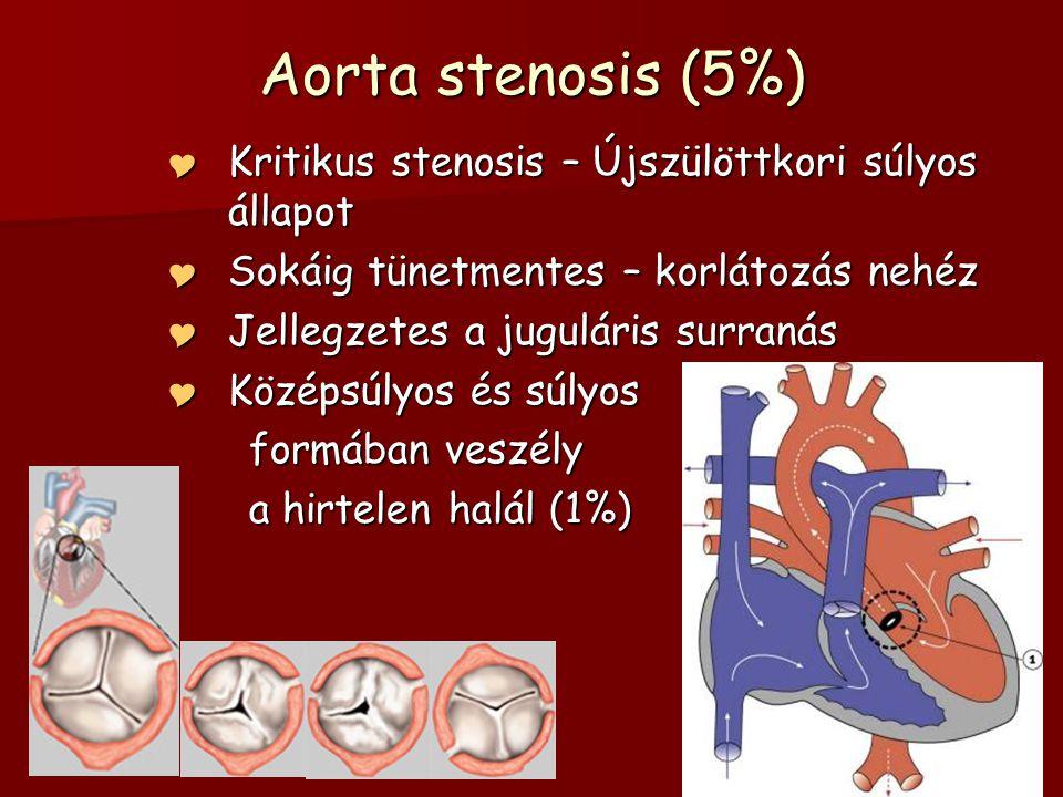 Aorta stenosis (5%) Kritikus stenosis – Újszülöttkori súlyos állapot